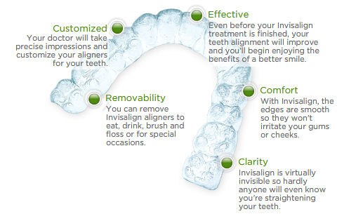 The benefits of using Invisalign